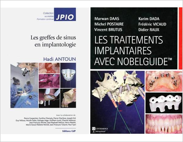 Greffes des sinus et les traitements implantaires avec NobelGuide