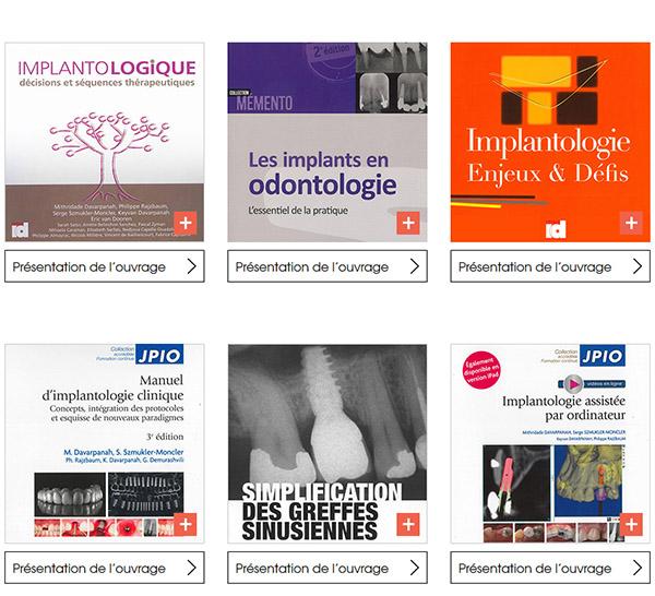 Publications implantologie et implants dentaires