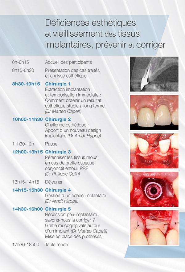 Déficiences esthétiques et vieillissement des tissus implantaires, prévenir et corriger