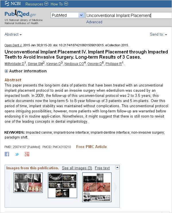 Unconventional Implant Placement