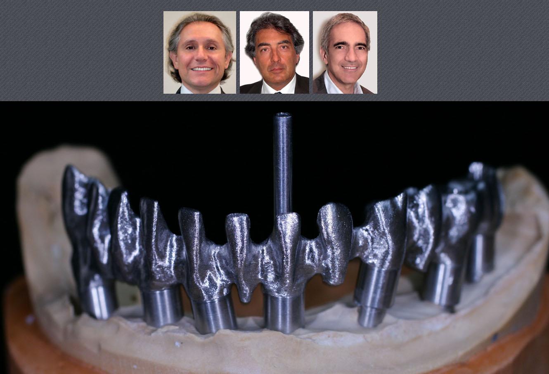 Mise en charge imm diate des implants dentaires eid paris for Chambre de mise en charge